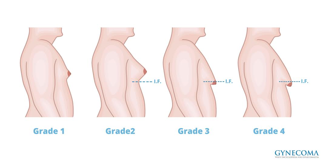 Gynecomastia Or Fat 36